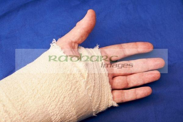 post operative bandages carpal tunnel surgery